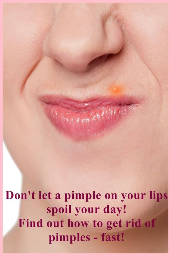 How To Get Rid Of Oil Bumps On Lips