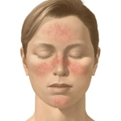 Rosacea Treatment, Explanation, Treatment and Health Advice - What to eat and advice what to avoid | Content by Healthy Food Encyclopedia