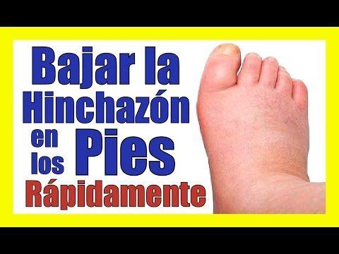 la diabetes puede hacer que los pies se hinchen