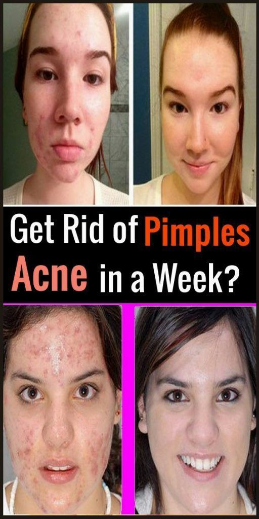 5ef59c3644413deda34e94643da4eb57 - How To Get Rid Of Cystic Acne In A Week