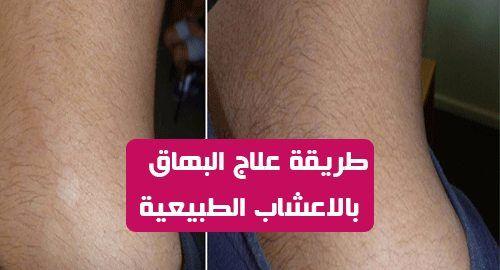 تعرف البقع البيضاء على الجلد بالبهاق البهاق هو مرض جلدي يعاني منه العديد من الناس يحدث ذلك بسبب تدمير خلايا الصبغ التي تسمى Samsung Gear Fit Samsung Gear Liar
