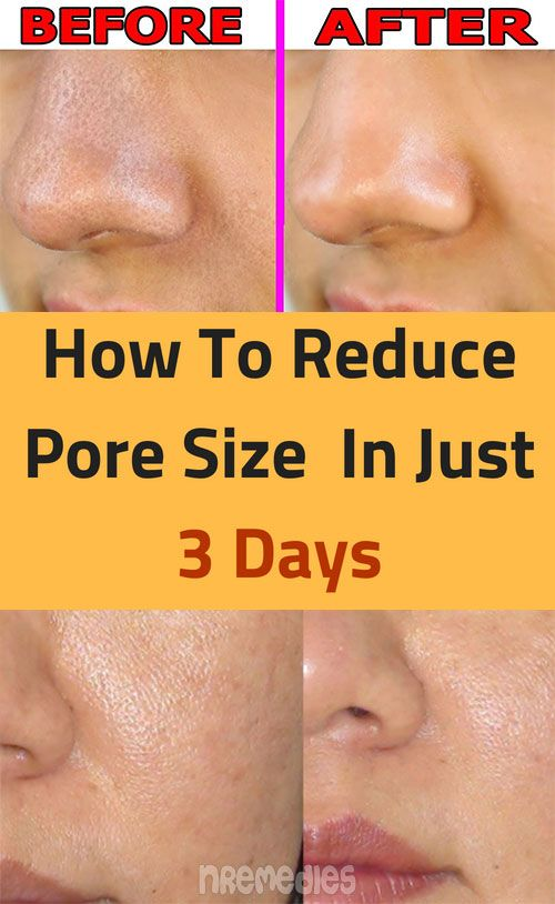 Sign In Reduce Pore Size Reduce Pores Health Skin Care