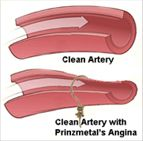 """What is Prinzmetal's Angina?"" (Article) - Ugh, the worst condition to have. Hurts like a bia and comes out of nowhere!"