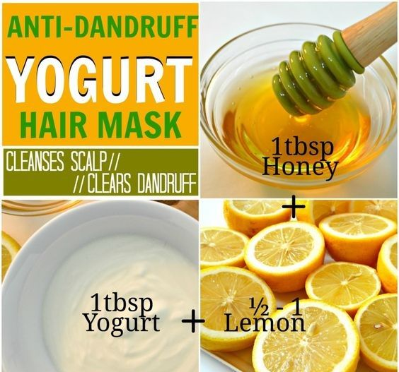 5f74ce7b5a2694326d236badce0b15e0 - How To Get Rid Of Dandruff Naturally In One Day