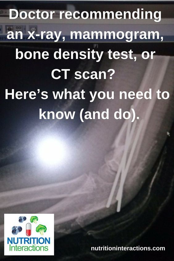 Doctor recommending an x-ray, mammogram, bone density test, or CT scan? Here's…