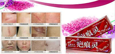 awesome TCM Scar Removal Cream Remove new old burn cut surgery acne scar stretch marks - For Sale