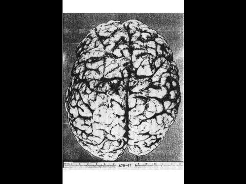 """Neurología 27 - La consciencia del Hemisferio Derecho: """"Split-Brain"""" - P..."""