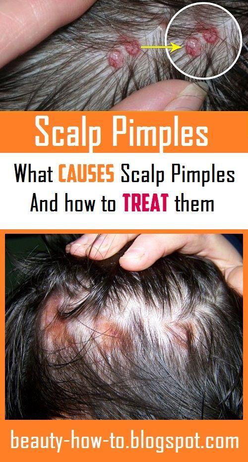60046a867732a5d8ee648130f572cb10 - How To Get Rid Of Red Spots On Scalp
