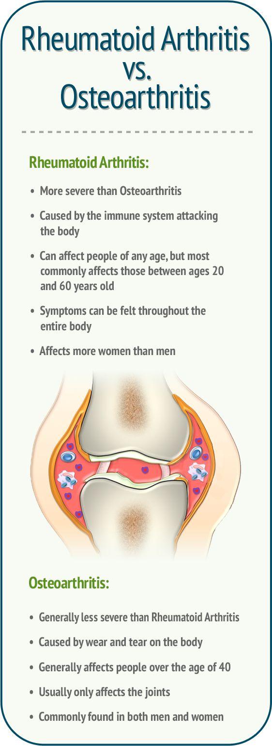 rheumatoid arthritis vs osteoarthritis rheumatoid arthritis more severe than oa caused by the. Black Bedroom Furniture Sets. Home Design Ideas