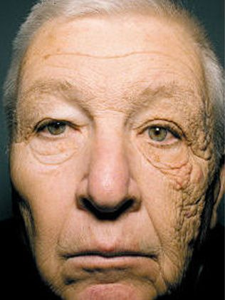 Sun Damaged Trucker: one side of Bill McElligott's face is 66 years old, the other is 86 due to a lifetime of sun damage from truck driving in Chicago.