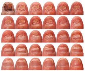 Wonderful Opi Brown Nail Polish Names Big Celebrity Nail Polish Regular Ways To Use Nail Polish How To Make Your Nail Polish Last Old Yeast Infection Nail Fungus Yellow3d Art Nail Cure Nail Fungus | Vicks Vapor Rub, The White And Nail Problems