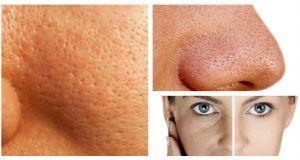 3 formas naturales de reducir los poros abiertos. ¡Resultados increíbles!