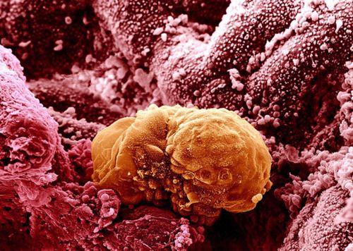 A human embryo implanting, six days after fertilization.: