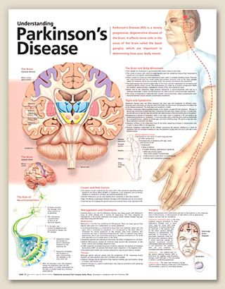 Advances in Parkinsons therapy essay for college
