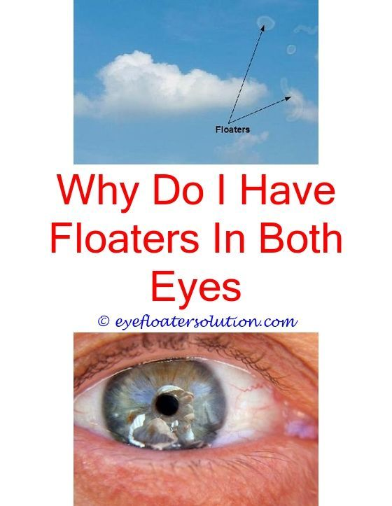 Does A Floater Look Like Hair In Your Eye What Causes Eye Floaters Eye Floaters Diseases What Par Floaters And Flashes Diabetes Eyes What Causes Eye Floaters
