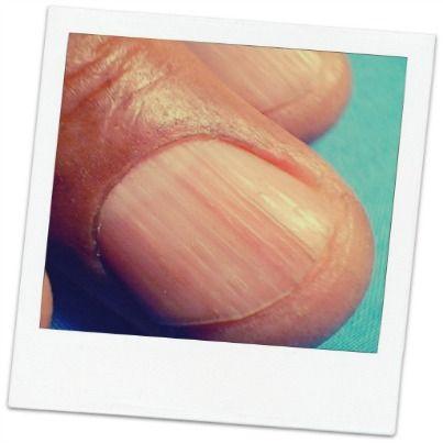 La Onicorrexis consiste en una fragilidad y fragmentación espontánea de la uña, con formación de estrías en sentido longitudinal. Es frecuente en personas de edad avanzada y con déficit nutricional y arteriosclerosis.
