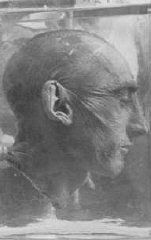 """The man in the picture is a Buchenwald concentration camp prisoner who underwent Nazi medical experimentation. Such experimentation took place during he Third Reich (Reich means """"empire"""" in German). There were three main categories of experiments. The first category of experiments was aimed at testing the limits at which humans could survive during war, specifically to ensure survival of the Axis military personnel."""