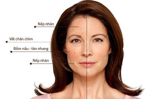 Cách chống lão hóa da mặt đơn giản đến không ngờ