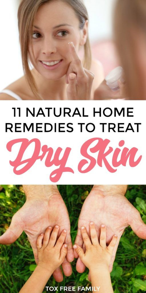 11 Home Remedies For Dry Skin In Winter A Better Skin Care Routine Dry Skin Remedies Winter Skin Care Routine Best Skin Care Routine