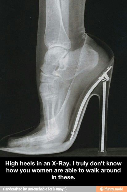 X-ray of a womans foot in heels