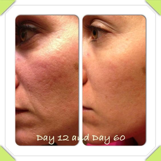 21 days for real results http://4cherylis.nerium.com
