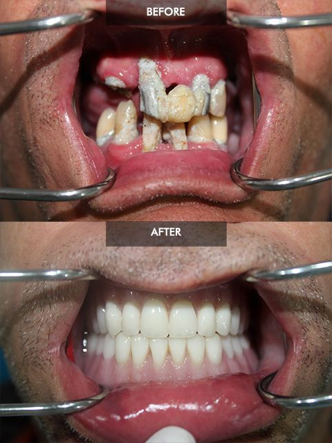 Before And After Fixed Hybrid Dentures How To Whiten Dentures Dental Implants Dental