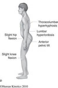 Lower Crossed Syndrome Type A vs. Type B: What's the difference?