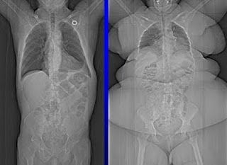 Article about choosing the best diet for you. Above is an x ray of an average weight female vs overweight...interesting