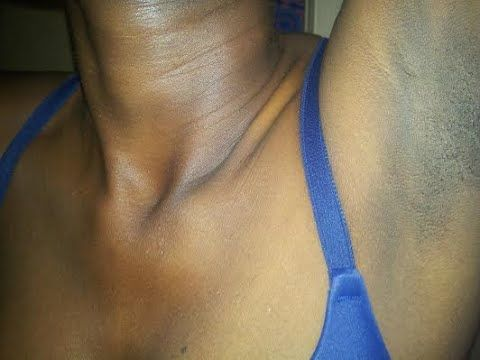 How to Treat Excessive & Smelly Armpits #Underarms