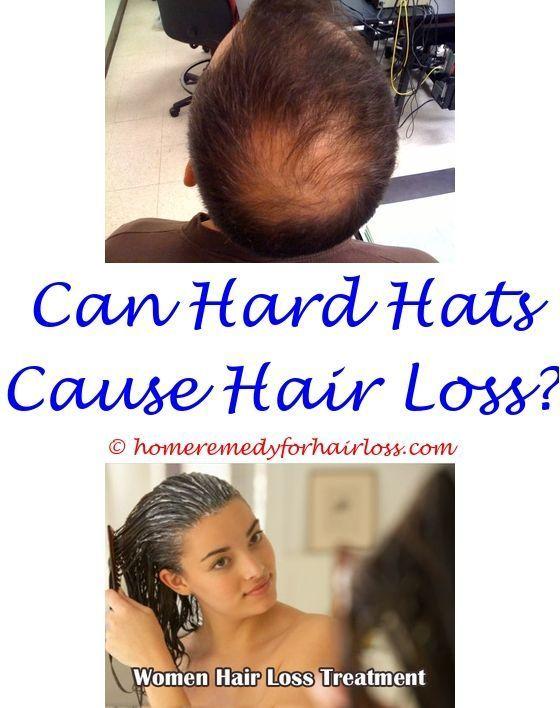 Causes Of Bald Hair Hair Loss Men Help Hair Loss Hair Loss Reasons