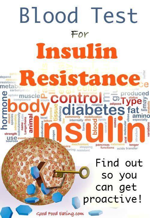 Most doctors won't test your insulin, yet knowing if you have insulin resistance could prevent you from getting type 2 diabetes. Find out about this Blood Test For Insulin Resistance / PreDiabetes so you know your level of insulin resistance and can get proactive if you need to.