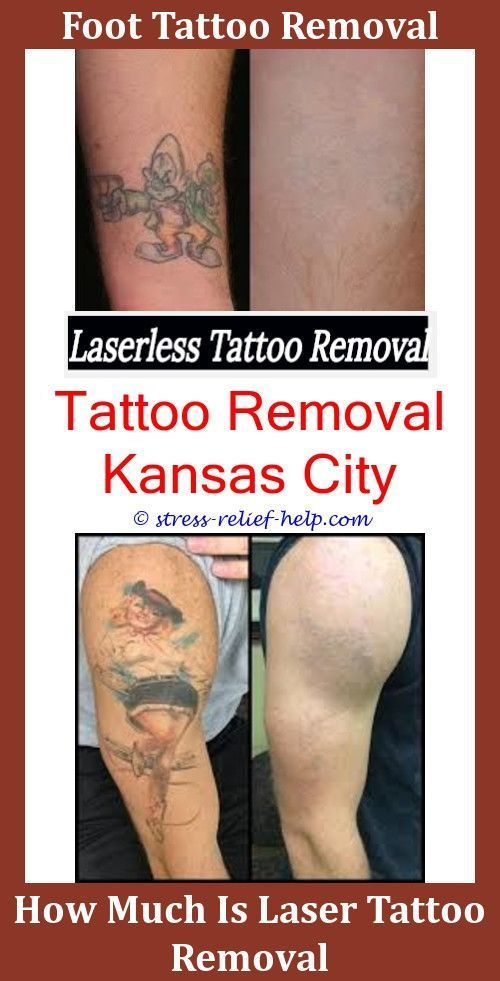 How To Remove Permanent Tattoo From Body At Home Cheap Tattoo Removal Does Tattoo Removal Cream Actuall Tattoo Removal Cost Laser Tattoo Removal Tattoo Removal