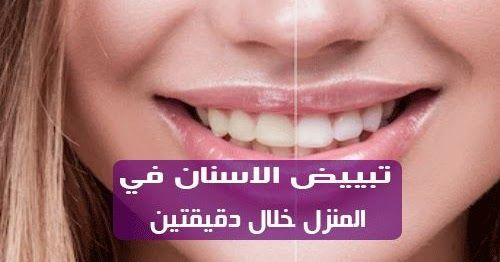 تبييض الاسنان في المنزل خلال دقيقتين فقط هل تعاني من اصفرار الاسنان اذا كانت اسنانك تزعجك امام اعين الاخرين يجب عليك الاهتمام بها واعطائها ولو دقيقتين من وقتك