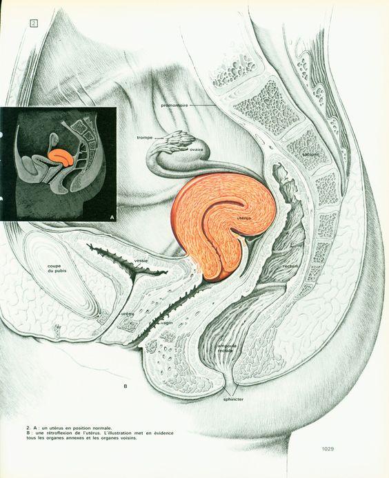 1975 Rétroflexion de l'uterus, illustration Obstétrique Gynécologie, decor…