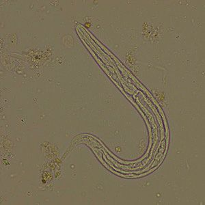 Strongyloides stercoralis(threadworm) symtpoms are ... Worms In Human Diarrhea