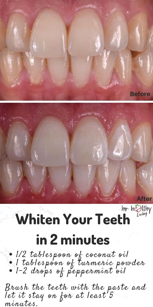 Pin On Teeth Whitening Advertisement
