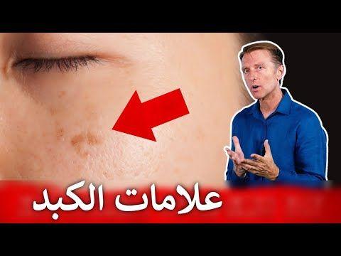 تسع علامات تنذرك بتراكم السموم في الكبد Youtube Youtube Health Movie Posters