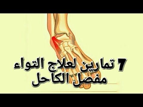 علاج التواء الكاحل 7 تمارين لعلاج التواء الكاحل Youtube