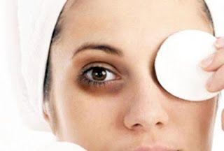 Si vous souffrez des cernes sombres ou noires sous les yeux à cause de stress ou d'un manque de sommeil, n'hésitez pas à tenter l'un des ces remèdes naturels pour atténuer les cernes