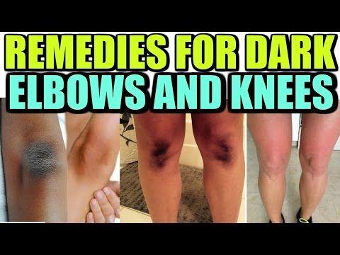 638b14e2d8d7c113de352c7902803d9a - How To Get Rid Of Black Knees And Armpits