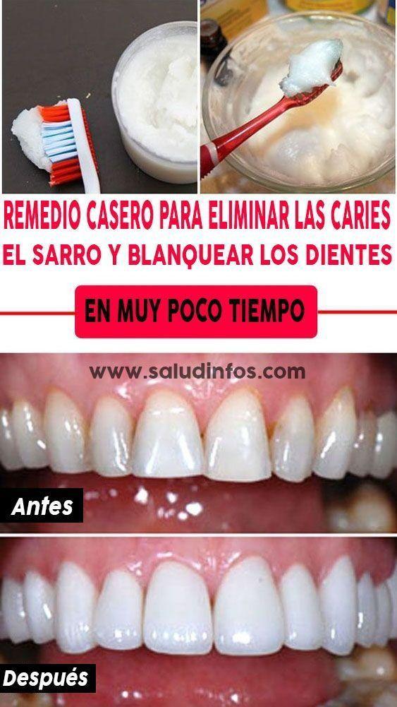 metodo para quitar el sarro de los dientes