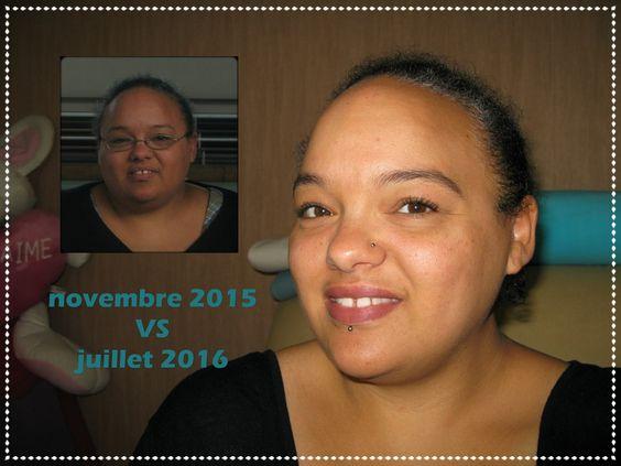 Avant/Après : Novembre 2015 VS Juillet 2016