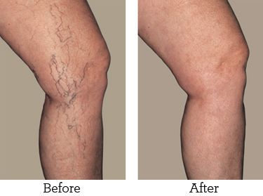 Varicose vein remedy: 30 drops of Cypress, 20 drops of Lavender, 10 drops of Lemon and 20 drops of Lemongrass wíth 60ml of fractíonated coconut oíl