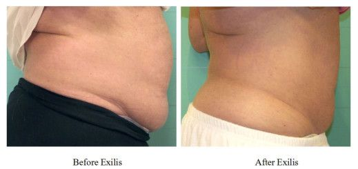 Exilis ELITE for Fat Reduction and Body Contouring in Newport Beach - Newport Beach Dermatology - Newport Beach Dentist - Newport Coast Dermatology - Dr. Grace Liu