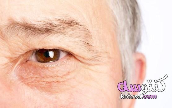 التنكس البقعي عوامل تزيد من فرص العمى 2020 Kntosa Com 30 20 158