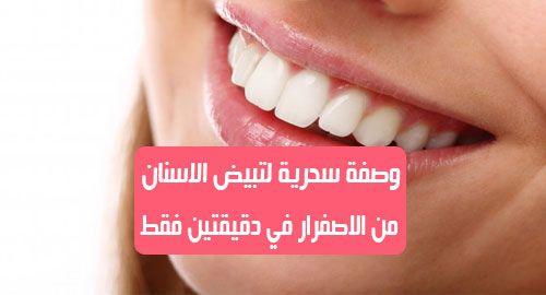 لتبيض الاسنان من الاصفرار العديد من الاشخاص لديهم اصفرار الاسنان وهذا يجعل ابتسامتك غير جميلة القهوة والمشروبات الغازية والتدخين من اكثر اسباب الاسنان الصفراء