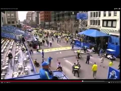 Boston Bomb Hoax? Phoney Leg Bone Prosthetic Falls Off? (Mirror)