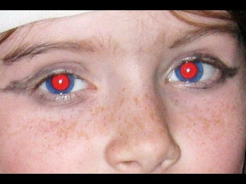 How to fix red eye in google photos