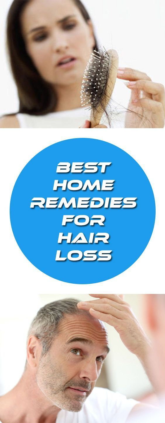Home Remedies For Hair Loss Natural Ways To Prevent Hair Loss