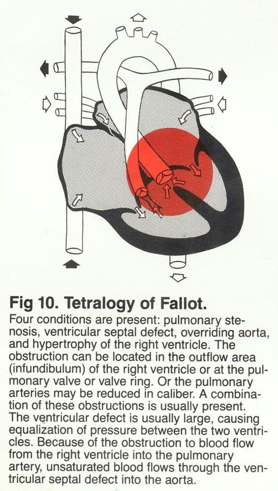 Congenital Heart Defects Diagrams
